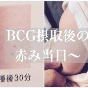 BCG当日あと画像