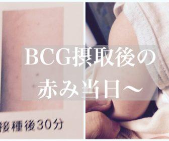 わが子の【BCG跡経過写真】当日から赤く腫れる画像