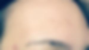 「画像付」洗顔を変えてニキビ悪化で学んだこと。原因は?